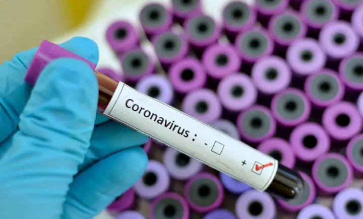 Togo confirms first Case of Coronavirus 1