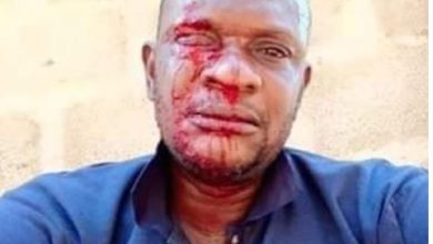 Photo of PHCN official attacked while distributing bills in Ogun