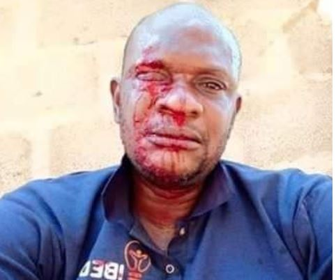 PHCN official attacked while distributing bills in Ogun 1