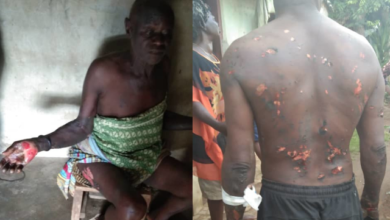 Photo of S.A to Cross River Governor allegedly burns his subordinates after a dream he had.