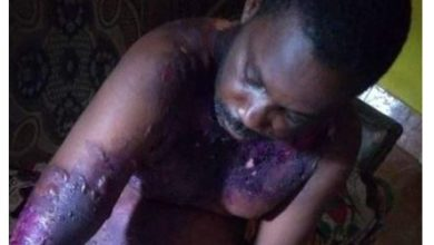 Photo of Nigerian man slapped his wife during an argument and she retaliated by pouring hot water on him while he was asleep (Photos)
