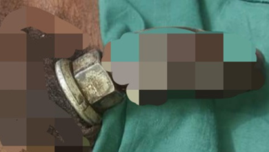Photo of Nigerian Man gets operated on after a metal nut got stuck in his private part while masturbating (Photos)