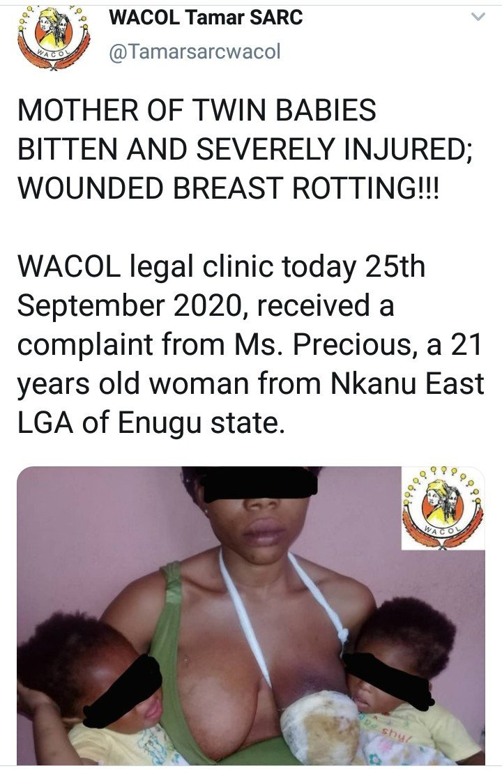 21-year-old nursing mother's breast begins to decay after she was allgedly bitten by her uncle 10