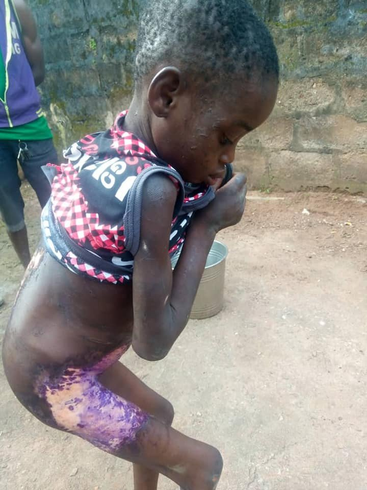 Woman pours hot water on 8-year-old house help for licking milk meant for her baby (Photos) 9
