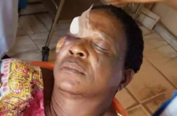 Photo of Aggrieved youth beat politician's wife in Edo