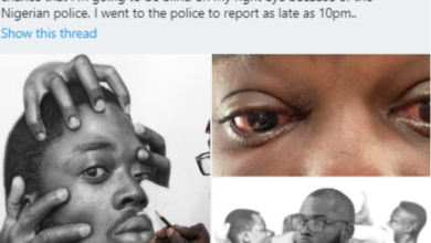 Photo of Nigerian artist accuses PH police of brutality, says he might go blind on his right eye
