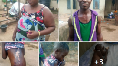 Photo of Woman pours hot water on 8-year-old house help for licking milk meant for her baby (Photos)